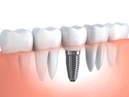 impianto per mancanza dente singolo