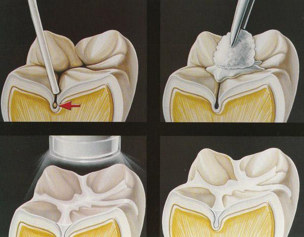 sigillatura molari per bambini