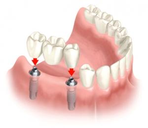 impianto per mancanza denti vicini