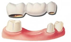 Protesi su denti naturali